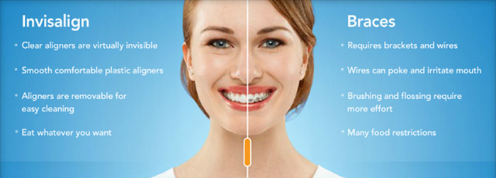 Invisalign braces vs metal braces for teeth straightening with a Utah County dentist Provo and Orem